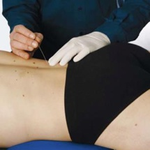 Dry-needling la position de Kpten Formation suite à l'avis publié par l'Ordre national des kinésithérapeutes
