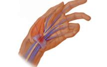 Efficacité de l'approche neurodynamique dans le cadre de syndrome du canal carpien