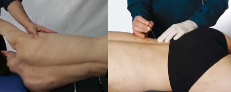 Thérapie manuelle et Dry needling des points trigger, Combi Top 30 - Approche de la David G. Simons Academy