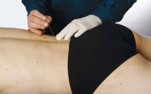Dry Needling - Top 30