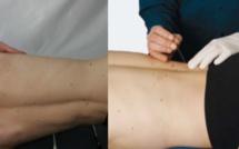 Thérapie manuelle et Dry needling des points trigger - COMBI Top 30