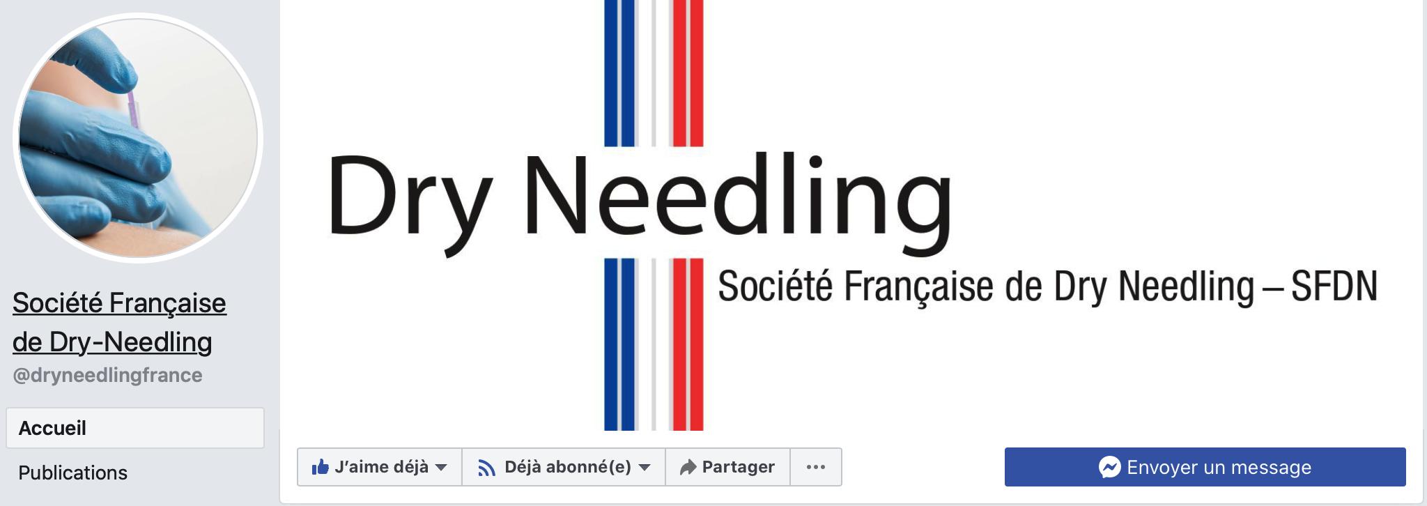 Société Française de dry-needling